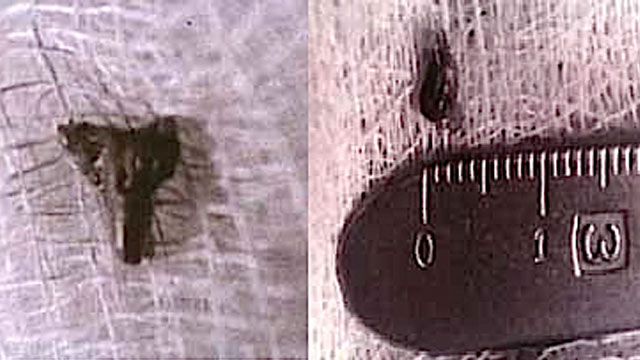 Alien-Abduction-Implant-Evidence, Εξωγήινα εμφυτεύματα μέσα σε ανθρώπους
