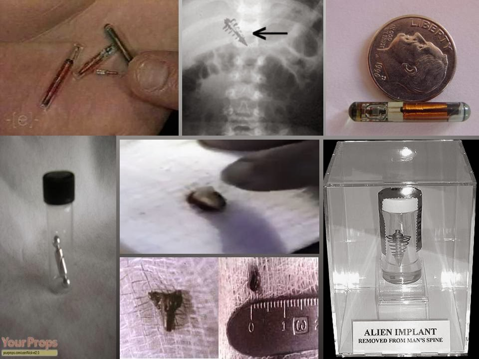 alien implants, Εξωγήινα εμφυτεύματα μέσα σε ανθρώπους